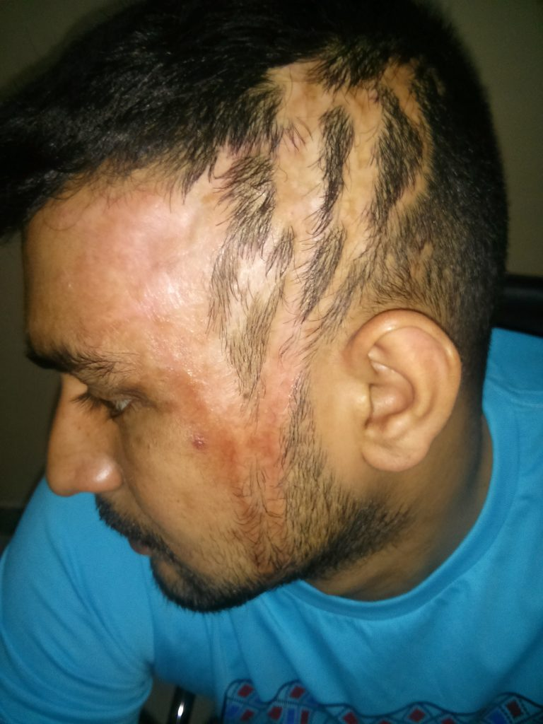 burn-marks-and-baldness-after-an-acid-attack